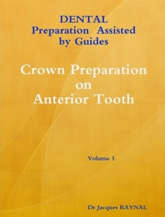 Crown Preparation on anterior tooth Volume 1