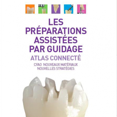 Les préparations assistées par guidage - Atlas connecté (CFAO) Jacques Raynal, Bertrand Bennasar, Michel Fages
